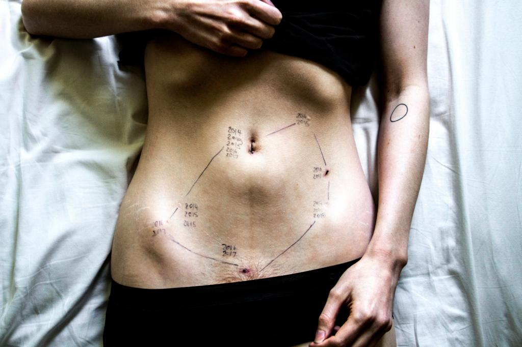 Georgie Wileman, Endometriosis, 2014-2017